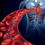 heart disease and psoriasis