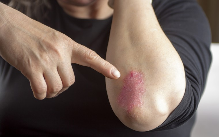 Psoriasis and koebnerization