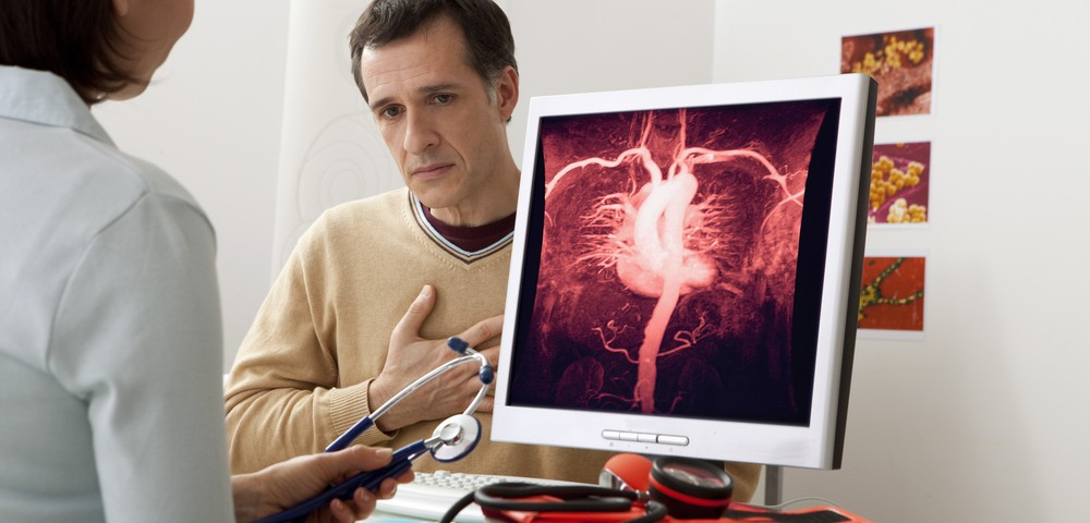 Severe Psoriasis Linked to High Risk of an Aortic Aneurysm, Especially in Younger Men