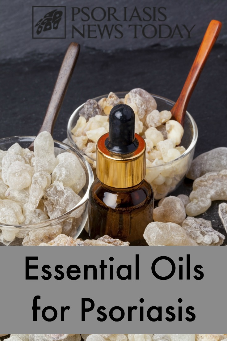essential-oils-for-psoriasis