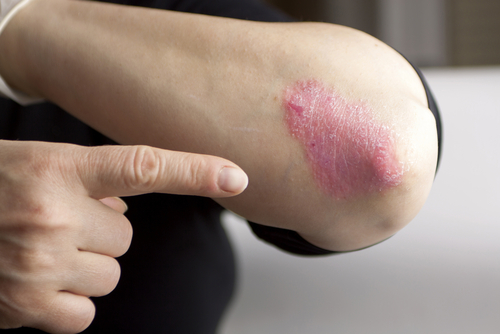 People Hospitalized for Psoriasis and Atopic Dermatitis Both at Higher Risk of Dying, Study Reports