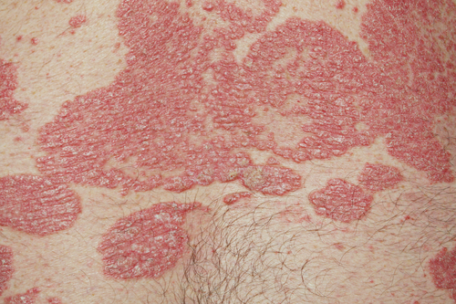 Potential Topical Treatment for Psoriasis Shows Promise in Preclinical Studies
