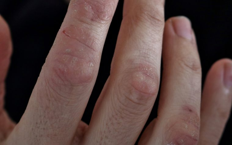 Skin's Immune Response Thrown Off Balance in Psoriasis, Study Finds