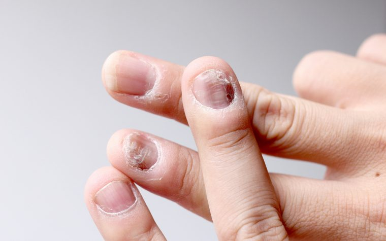 Xeljanz (tofacitinib) effective against nail psoriasis.